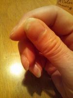 くっついた爪.JPG