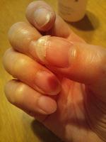折れた爪.JPG